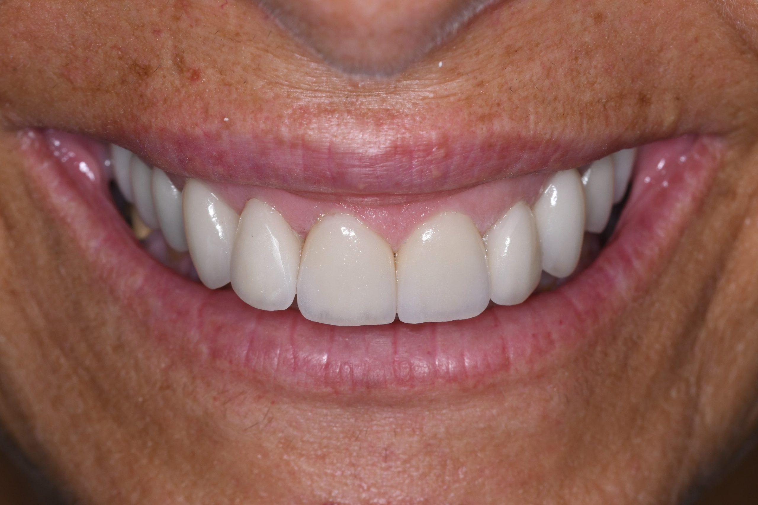 הדרך לציפוי שיניים מוצלח ללא הפתעות