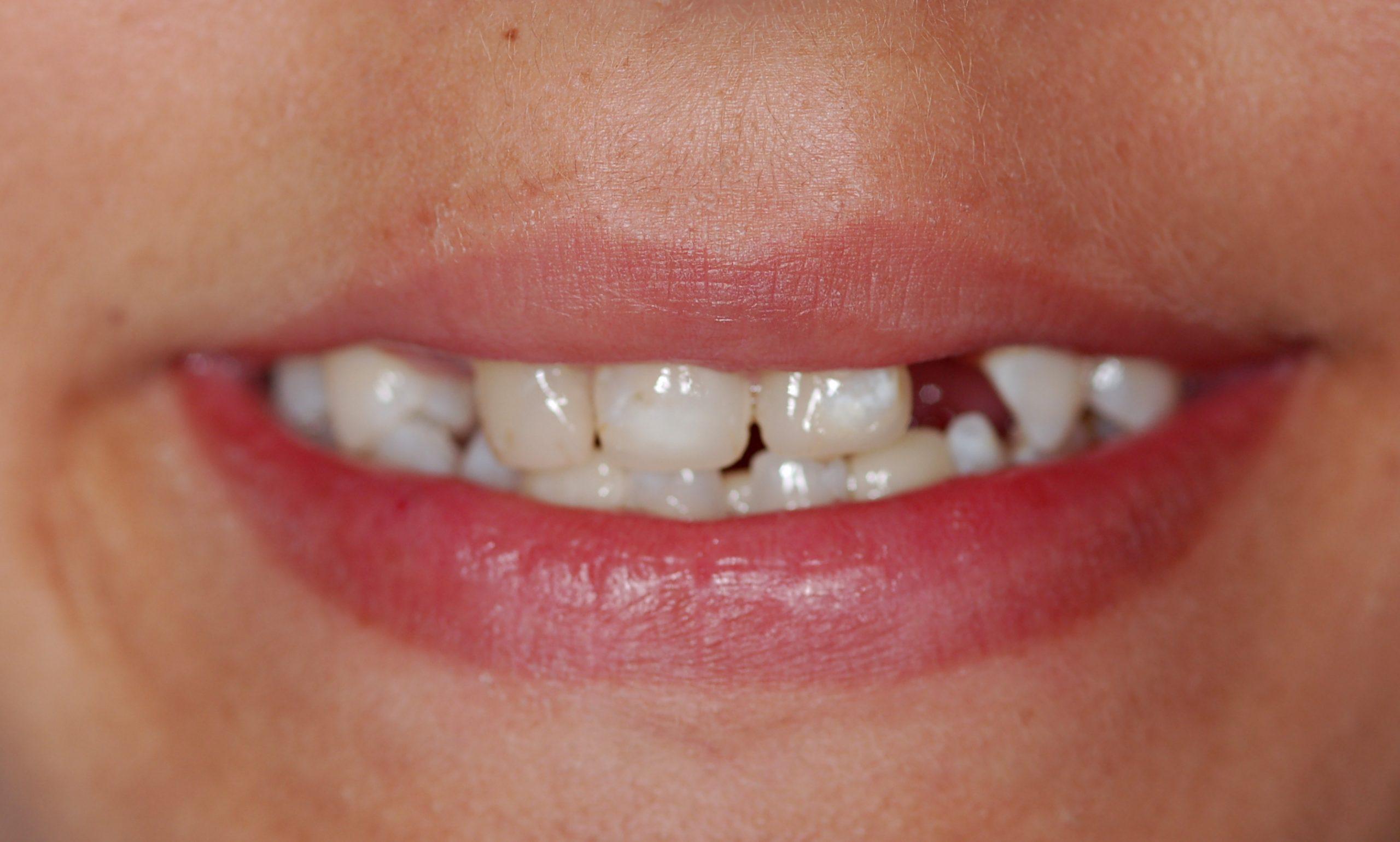 שיניים חסרות