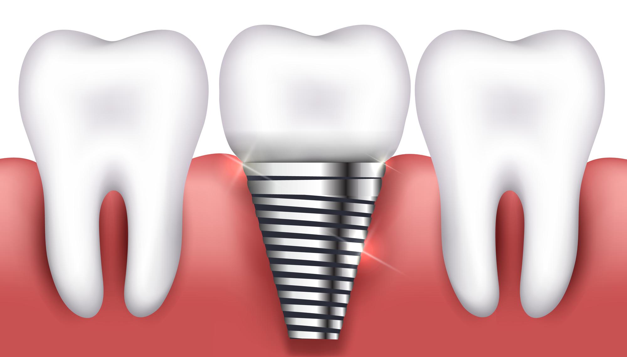 כל מה שרצית לדעת על השתלת שיניים