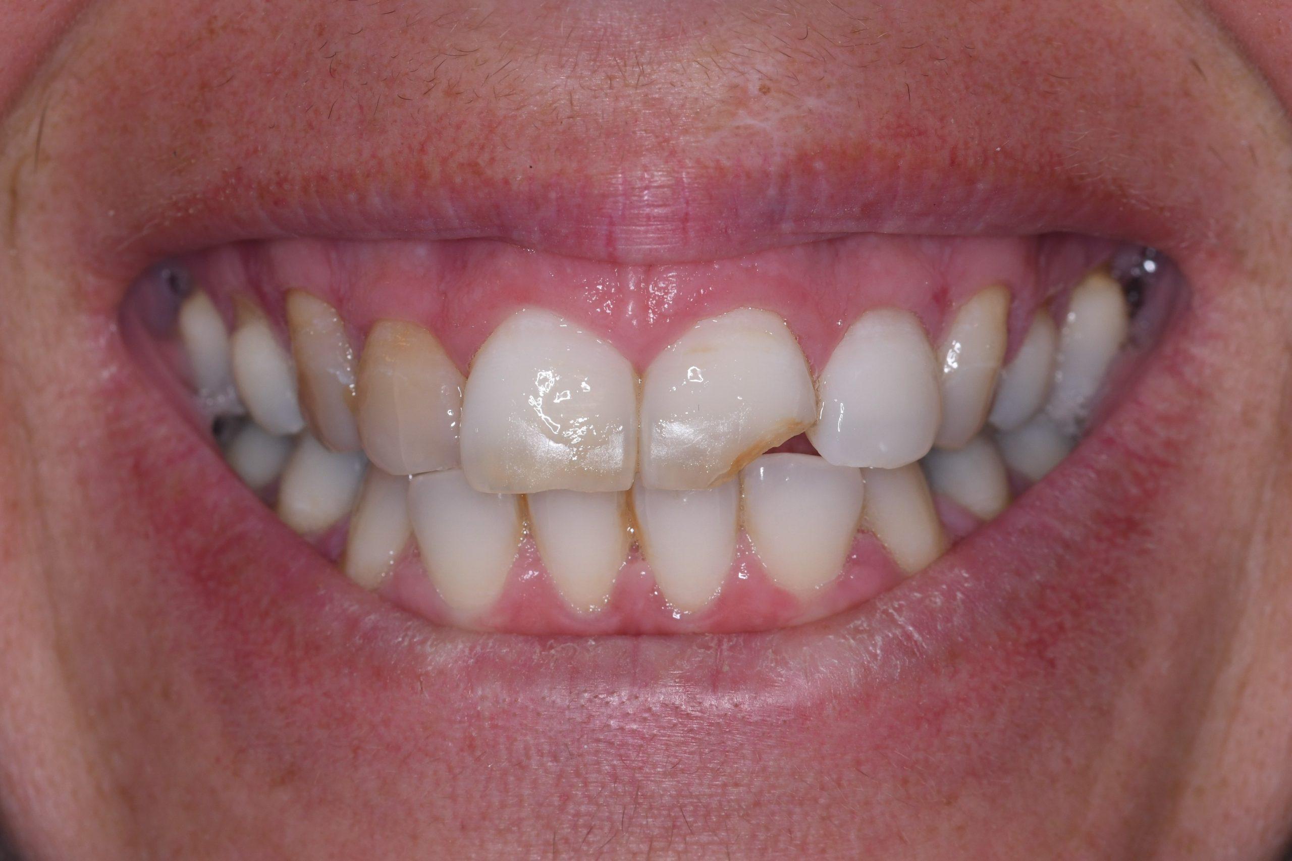 השלמת שיניים שבורות